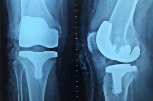 Weihrauch Kapseln Wirkung bei Arthrose
